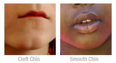 Dimple Creation NYC by Dr. Michelle Yagoda